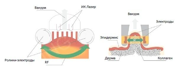 Cellulite_Wrinkle_Removal_RF_Vacuum_Slimming_System_schema